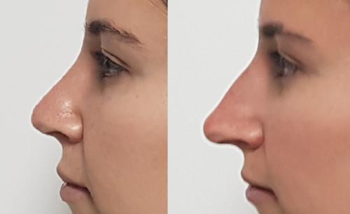 revision_nose ניתוחים אסתטיים | דר דובדבני שי יצחק