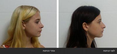 ---71 ניתוחי אף פלסטי אסתטי משולב עם רפואי