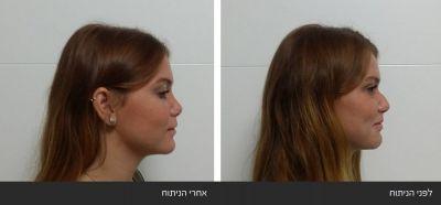 ---8 ניתוחי אף פלסטי אסתטי משולב עם רפואי