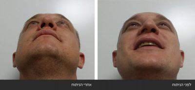 ---9 ניתוחי אף פלסטי אסתטי משולב עם רפואי