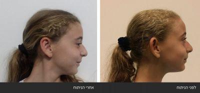 ----22 תמונות ניתוח הצמדת הקטנת אוזניים