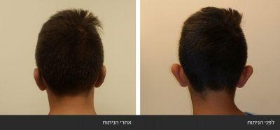 599039c72b989 תמונות ניתוח הצמדת הקטנת אוזניים
