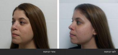תיקון ניתוח אף כושל של קצה האף ואי סדירות בגשר האף